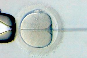 Microinyección ovodonación