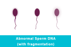 Abnormal Sperm DNA (with fragmentation)
