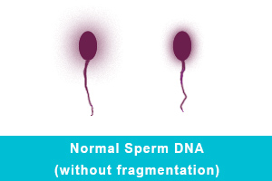 Normal Sperm DNA (without fragmentation)